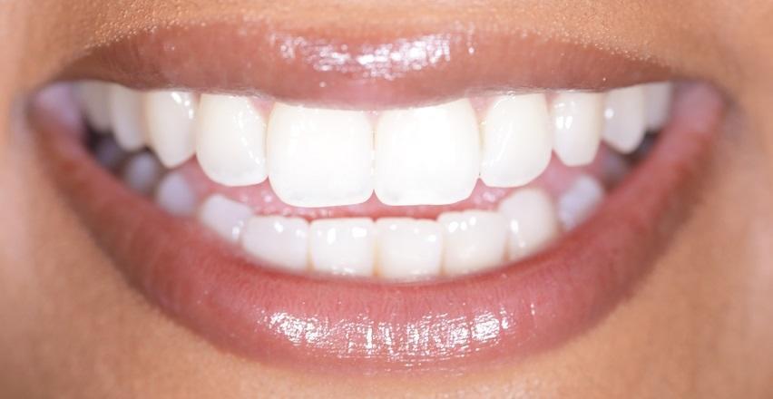 Czy wybielanie zębów jest dla każdego?