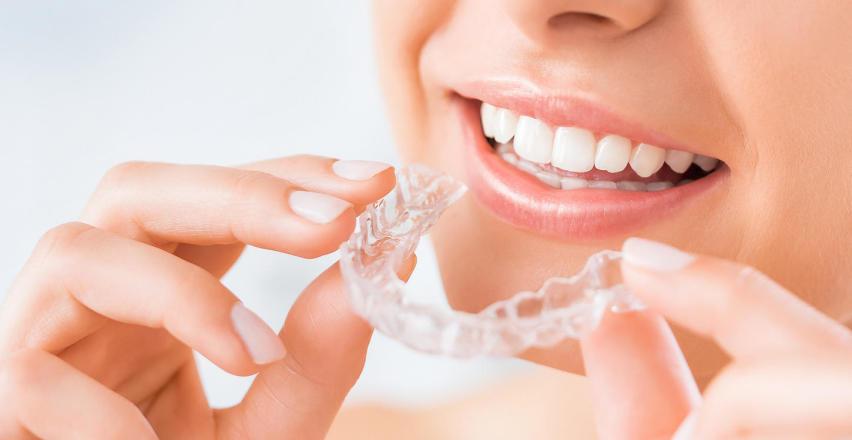 Ortodontyczne nakładki na zęby – wady i zalety