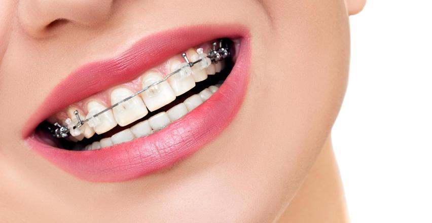 Aparaty ortodontyczne – sposób na ładne i proste zęby