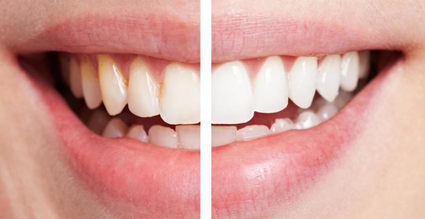 Wybielanie zębów ze specjalistą