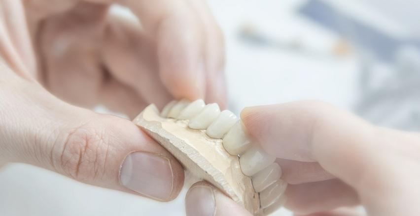 Protetyka stomatologiczna. Rodzaje protez zębowych
