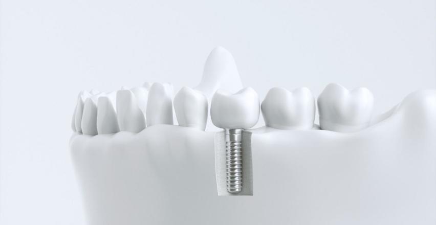 Dlaczego odbudowa uzębienia z użyciem implantów zębowych jest tak skuteczna?