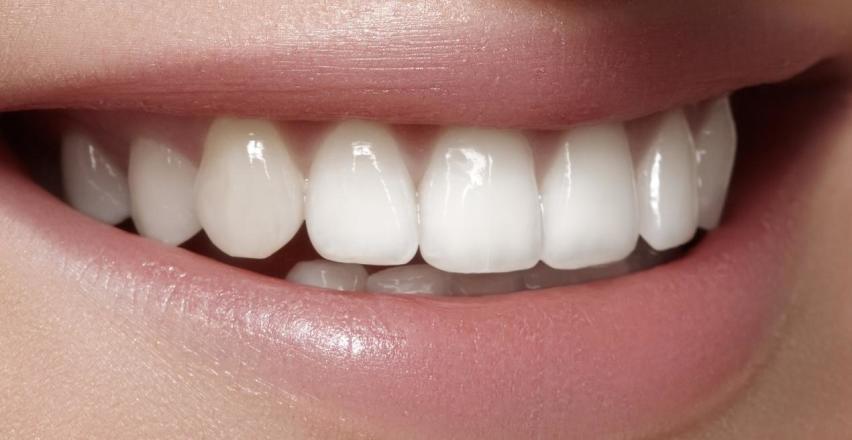 Metody profesjonalnego wybielania zębów