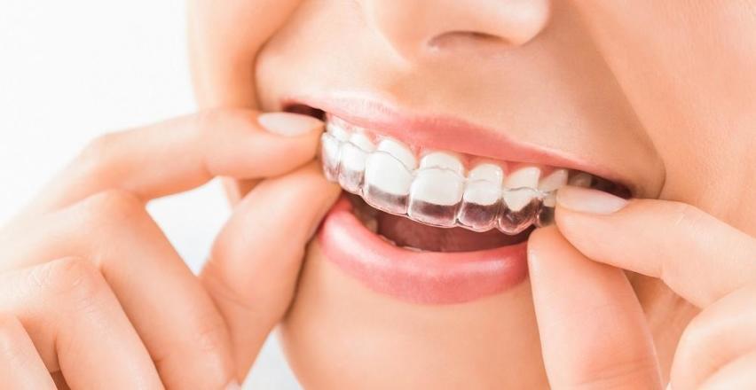 Prostowanie zębów nakładkami