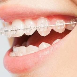 Aparaty estetyczne w ofercie gabinetu ortodontycznego Orchidea-Dent