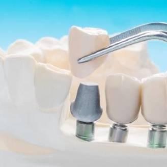 Różnice między protezą a implantem zębowym