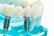 Implanty czy protezy? Jaki rodzaj wypełnienia zębowego wybrać?