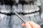 Kiedy konieczna jest tomografia zębów?
